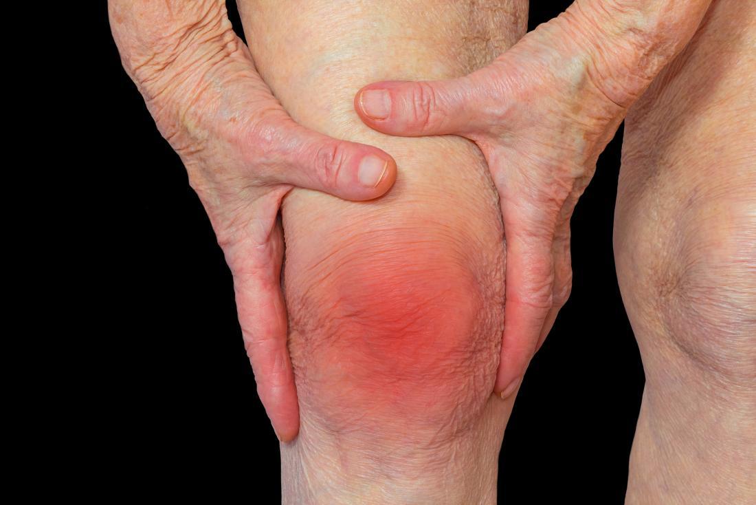 rheumatoid arthritis treatment forest hills queens ny
