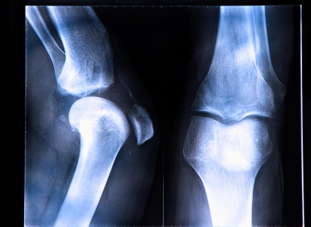 ACL Tear | Treatment of Injured ACL at No Fault Doctor in Forest Hills, NY